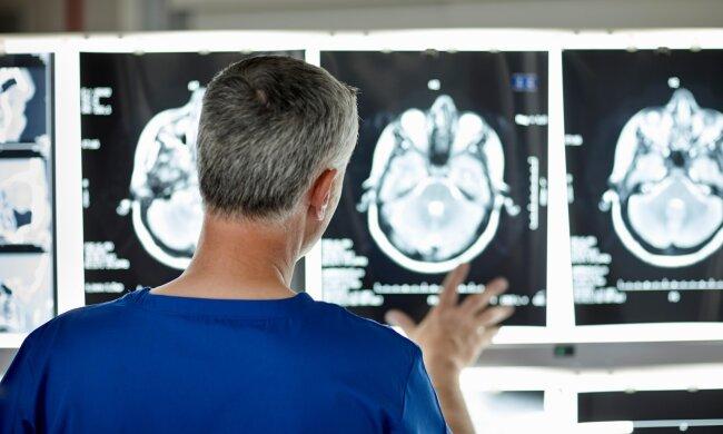 Невероятное открытие: ученые выяснили, что мужской мозг продолжает развиваться до 40 лет