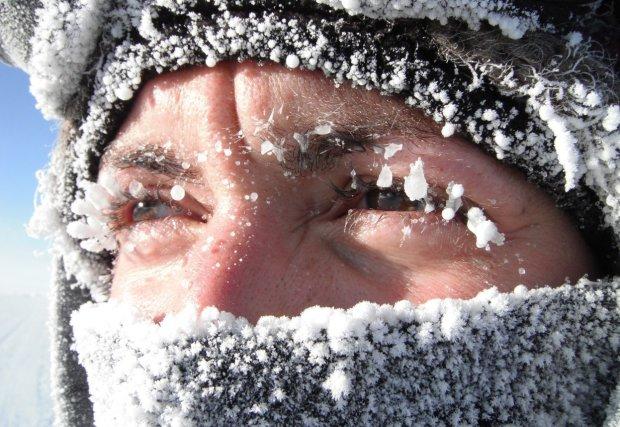 Из-за аллергии на зиму девушка рискует умереть в любую секунду