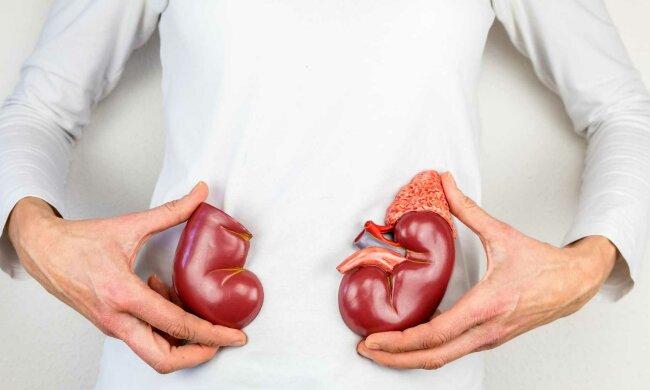 Этого можно избежать: медики рассказали, как защититься от мочекаменной болезни