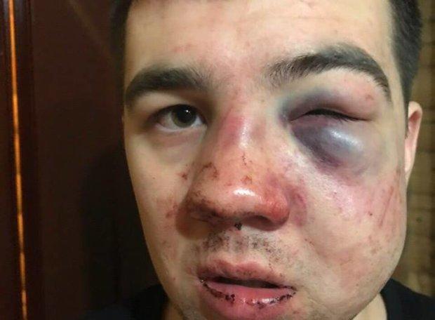 «Взяли за голову и ударили коленом. После этого он потерял сознание, потом били ногами», — на популярном курорте избили сына украинского депутата